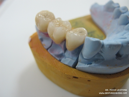 Metal ceramic fixed-fixed partial denture.  - denturesguide.com