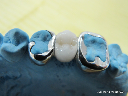 Resin Retained Fixed Partial Denture on master cast - denturesguide.com