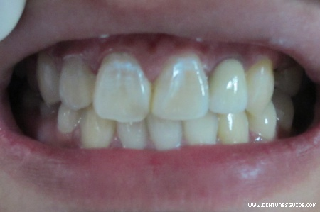 Metal ceramic cantilever fixed partial denture