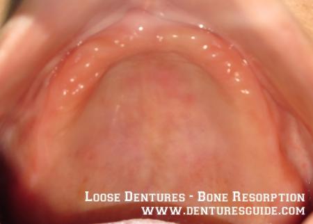 Bone resorption causes loose dentures. Loose dentures cause bone resorption - denturesguide.com