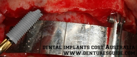 Dental implants cost in Australia - denturesguide.com