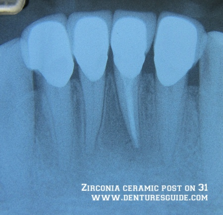 Zirconia ceramic post - denturesguide.com