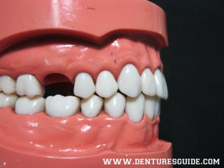 Typodont - denturesguide.com