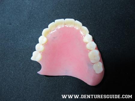 Transition denture. - denturesguide.com